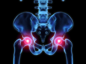 Prolotherapy Hip