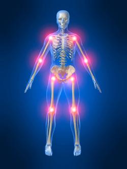 Prolotherapy Skeleton